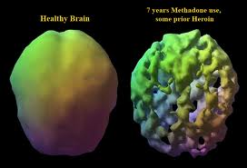 Normal brain, left, and methadone brain, right